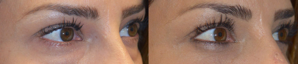 Los Angeles Eyelid Oculoplastic Procedure