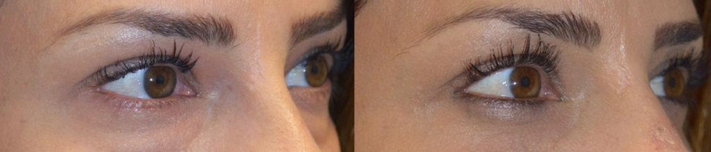Los Angeles Eyelid Oculoplastic Procedure