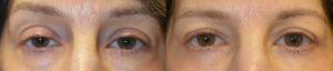 Los Angeles Oculoplastic Blepharoplasty