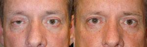 Santa Barbera Crooked Eyes Oculoplastics