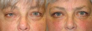 Los Angeles Asymmetrical Eye Procedure