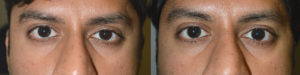 Los Angeles Crooked Eyelid Procedure