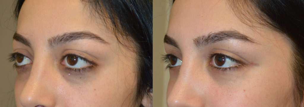 18 year old female teenager, with rare childhood Graves disease resulting in bulging eyes and change in eye shape, underwent orbital decompression surgery and lower eyelid retraction surgery. Before and 2 months after surgery results are shown. You can find her video testimonial on our website testimonial page.