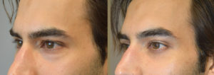 27 year old male actor, complained of looking tired on camera due to under eye bags and dark circles (hollowness). He underwent cosmetic lower blepharoplasty (transconjunctival with fat bags repositioning). Before and 2 months after cosmetic eyelid surgery photos are shown.