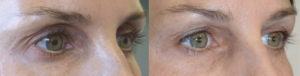 Los Angeles Non-Surgical Dark Circles