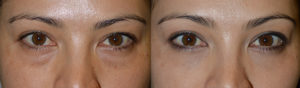 Los Angeles Under Eye Bags Injections