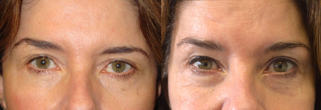 Los Angeles Uneven Brows Surgical Procedure