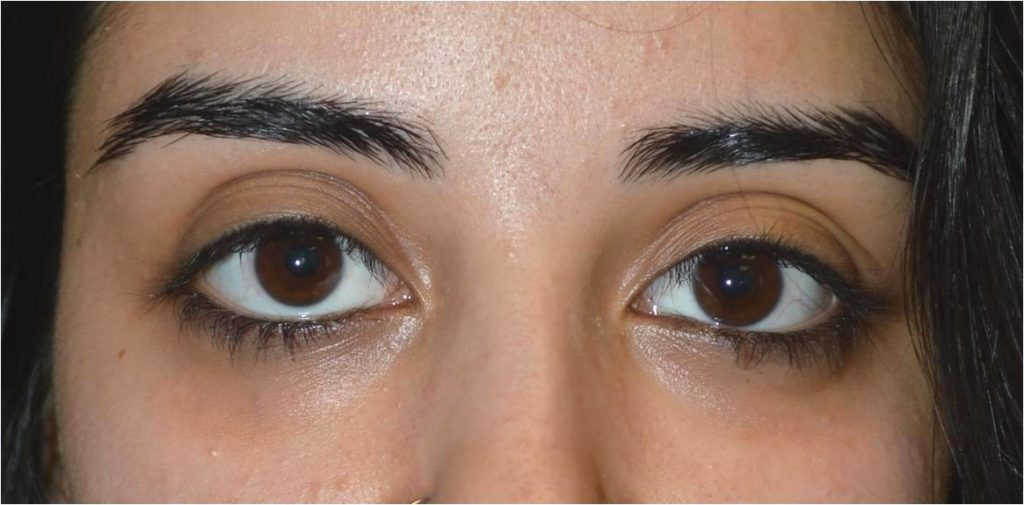 Eye asymmetry due to right lower eyelid retraction with sclera show.