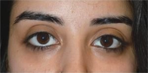 Los Angeles Drooping Lower Eyelid