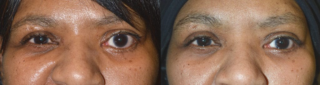 Before obvious eye asymmetry due to severe left lower eyelid retraction. After left lower eyelid retraction with improved eye symmetry.