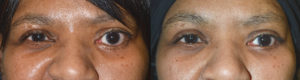 Los Angeles Lower Eyelid Procedure
