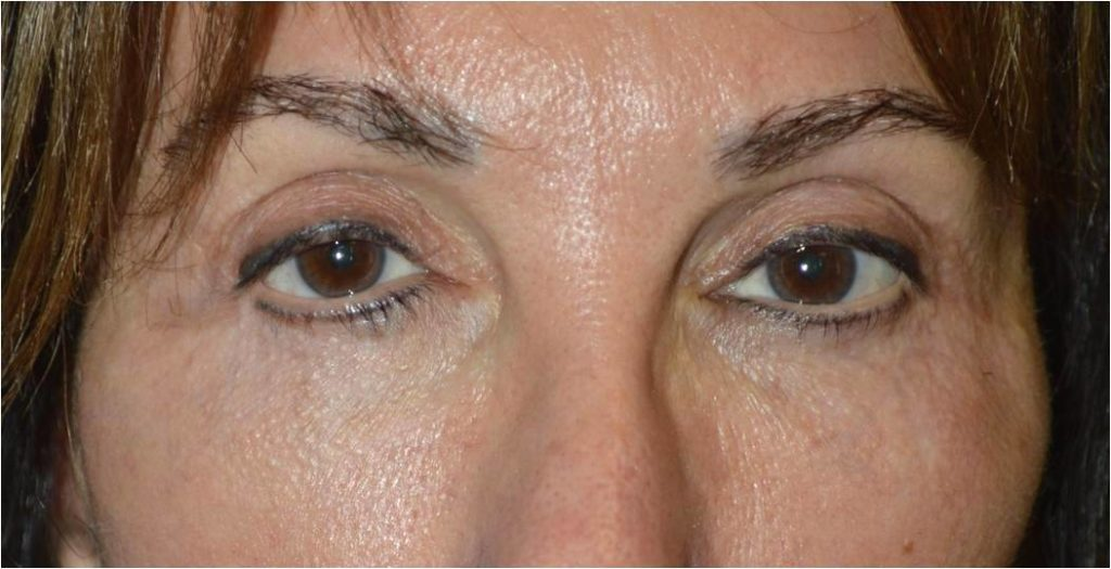 Los Angeles Unever Lower Eyelid Before