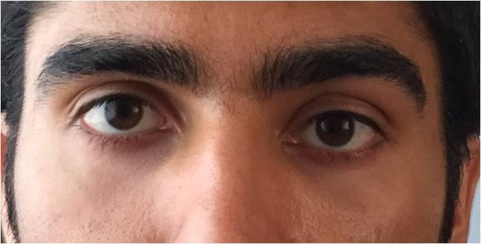 Los Angeles Eye Orbit Asymmetry