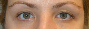 Los Angeles Uneven Eyelids Eye Bulging