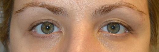 Beverly Hills Eye Asymmetry