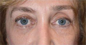 Los Angeles Hollow Eye Socket Correction