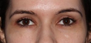 Beverly Hills Droopy Lower Eyelid Treatment