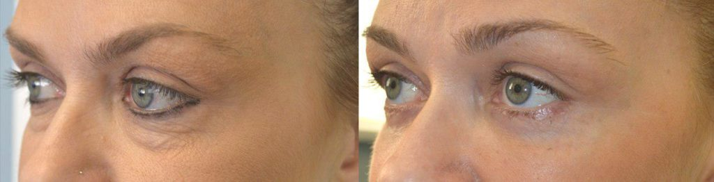 43 year old female, complained of under eye bags and wrinkles and dark circles. She underwent transconjunctival lower blepharoplasty (incision inside the lower eyelid) with fat bags repositioning to fill the hollow area below the bags, plus skin pinch technique to remove loose skin. Before and 6 weeks after cosmetic lower eyelid surgery photos are shown.