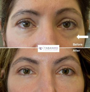 Los Angeles Eye Rejuvenation Doctor