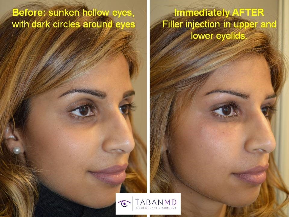 Los Angeles Oculoplastic Nonsurgical Solutions