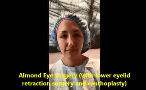 Young woman, with congenital lower eyelid retraction and negative canthal tilt, undergoes almond eye shape change via lower eyelid retraction surgery and canthoplasty.