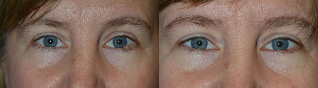 Los Angeles Facial Skin Cancer Surgeon