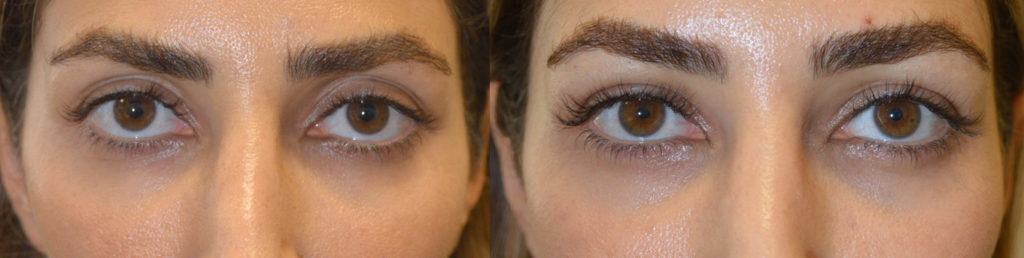 Beverly Hills Injectable Eye Enhancement