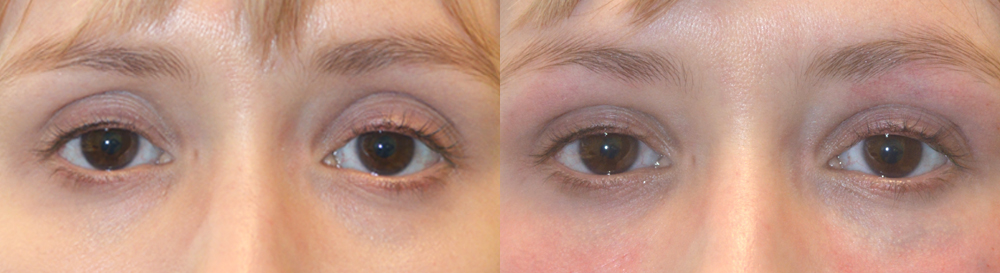 Beverly Hills Sunken Eyes Cosmetic Treatment