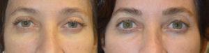 Beverly Hills Eyelid Ptosis Correction
