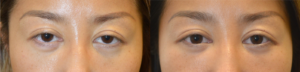 [FRONT VIEW] 30 year old Asian female, from Shanghai China, with inherited tired and bulging appearing eyes, underwent almond eye surgery with lower eyelid retraction repair, cosmetic orbital decompression, and upper eyelid ptosis surgery. Before and 2 months after eye plastic surgery photos are shown.
