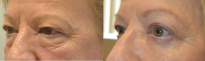 53 year old female, looking tired and older, underwent cosmetic Quad-blepharoplasty: upper blepharoplasty + lower blepharoplasty (transconjunctival with fat bags repositioning and skin pinch), under local anesthesia with oral sedation in the office. Before and 3 months after cosmetic eyelid surgery procedures photos are shown.