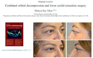 Dr. Mehryar Taban Manuscript Bulging Eyes and Eyelid Retraction