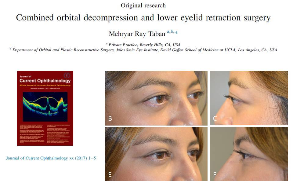 Dr. Mehryar Taban Manuscript Bulging Eyes and Eyelid Retraction