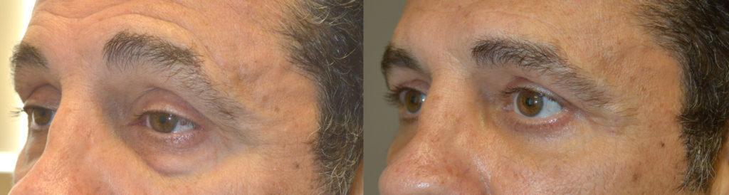 Eyelid Lift Procedure