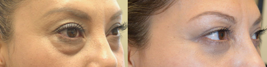 Baggy Under Eyes Surgery Beverly Hills