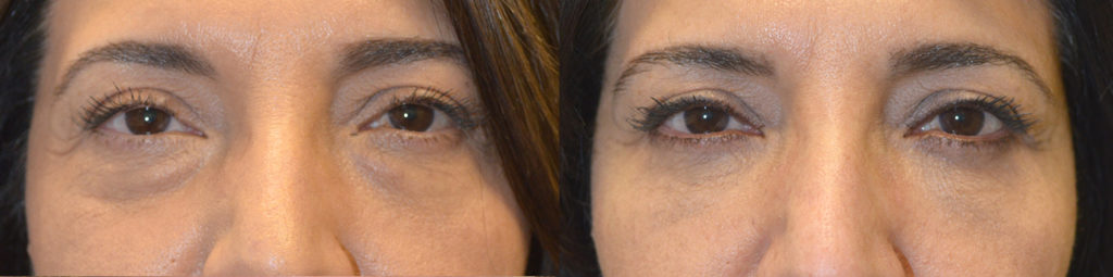 55 year old female, complained of under eye bags and dark circles. She underwent transconjunctival lower blepharoplasty with fat repositioning and skin pinch. Before and 2 months after cosmetic eyelid plastic surgery photos are shown.