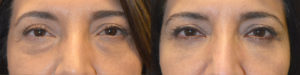 55 year old female, complained of under eye bags and dark circles. She underwent transconjunctival lower blepharoplasty with fat repositioning and skin pinch. Before and 2 months after cosmetic eyelid plastic surgery photos are shown.​