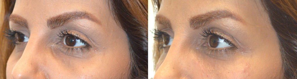 Facial Under Eye Filler Beverly Hills