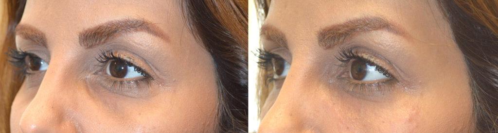 Facial Under Eye Filler Beverly Hills