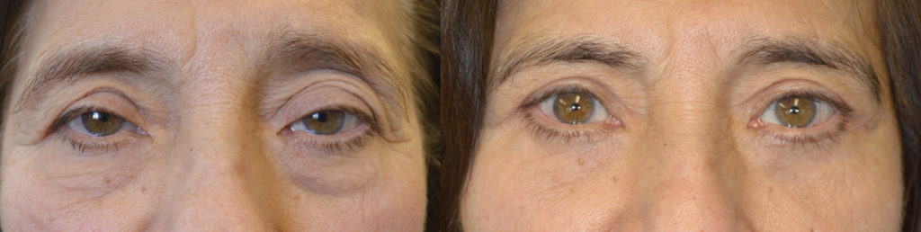 Los Angeles Droopy Eye Surgery