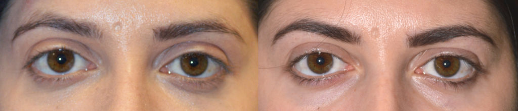 Dermal Filler Eye Rejuvenation