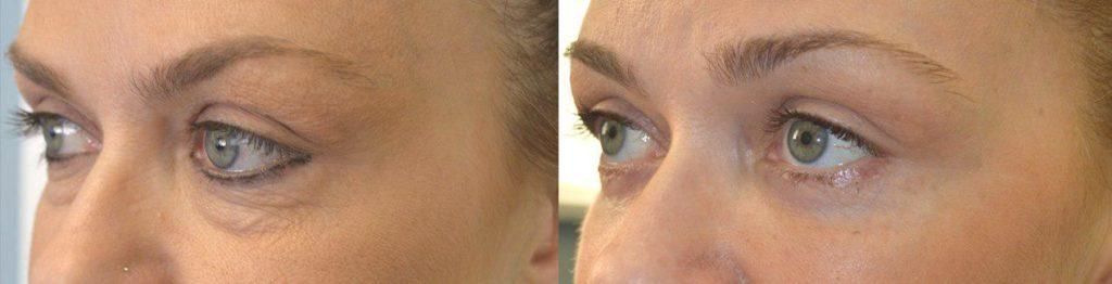 Dark Circles Eye Surgery Los Angeles