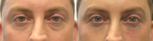 Baggy Eyes Injectables Beverly Hills