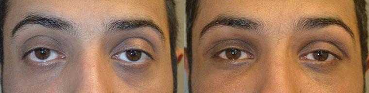 Los Angeles Canthoplasty Eyelid Procedure