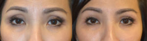 Beverly Hills Dermal Filler Sunken Eyes
