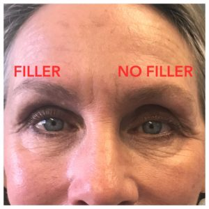 Beverly Hills Sunken Eye Socket Fillers