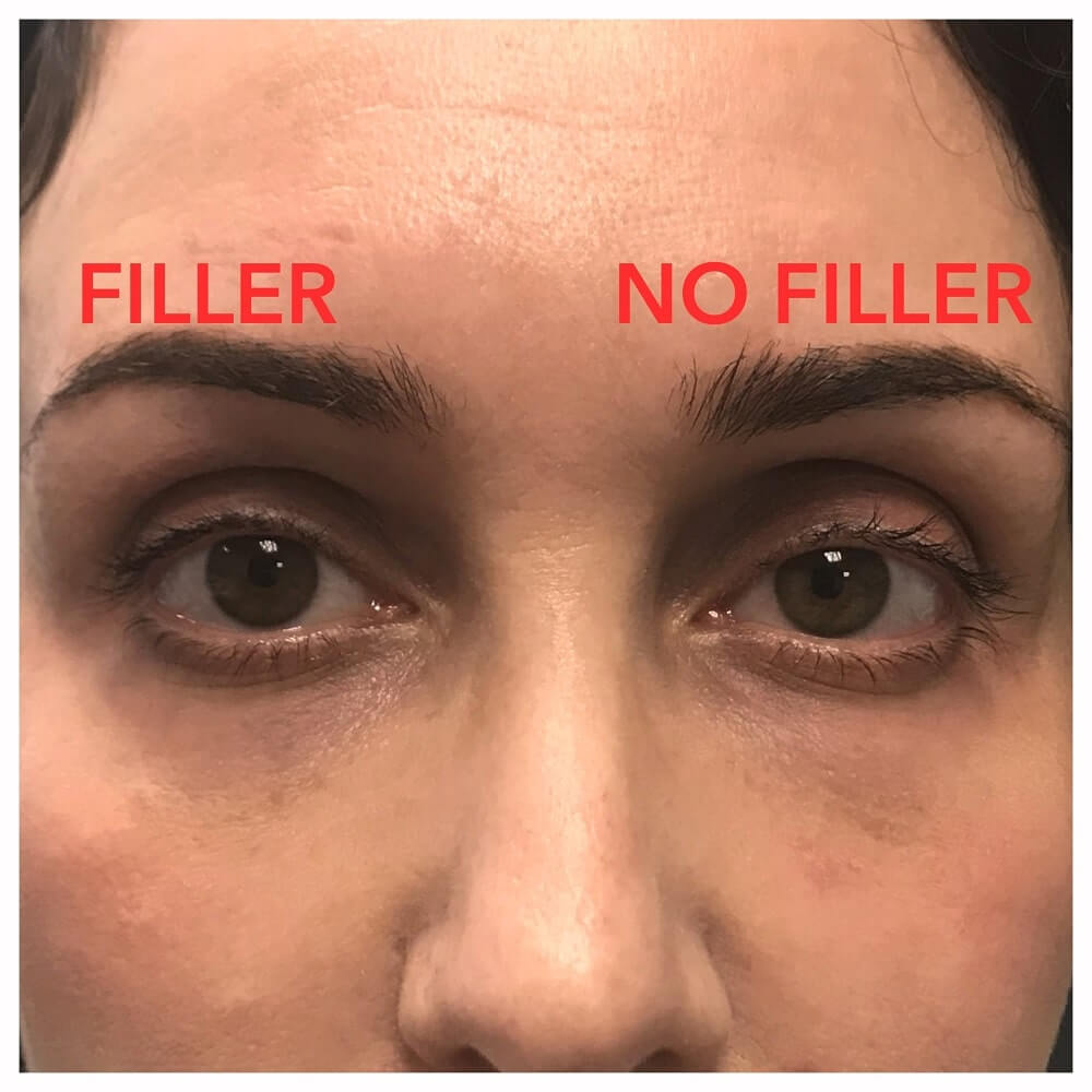 Cosmetic Filler Injection - Eyelid Filler Expert Beverly Hills