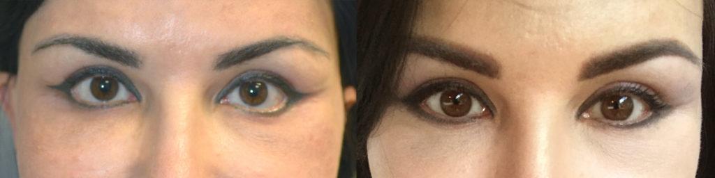 Beverly Hills Almond Eye Shape Procedure