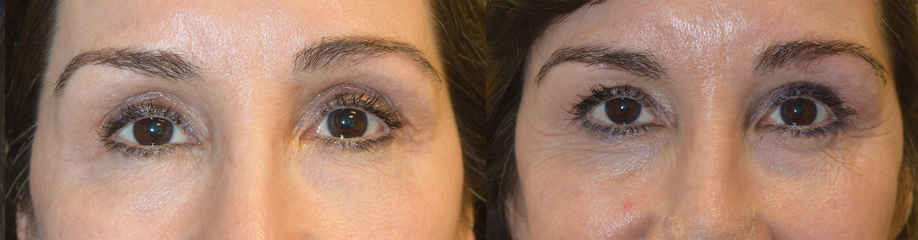 Eye Asymmetry