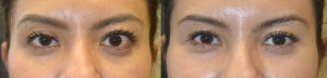 39 year old female, with graves thyroid eye disease with asymmetric eyes underwent following procedures: orbital decompression for bulging eyes (left worse), left upper retraction surgery, right upper eyelid ptosis surgery, and bilateral lower eyelid retraction surgery. Before and 3 months after eye plastic surgery photos are shown.